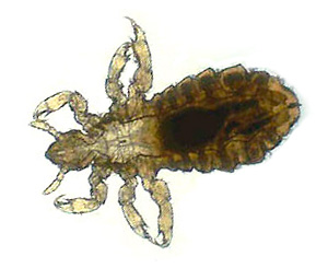 Head Body Lice Kill And Get Rid Of Head And Body Lice